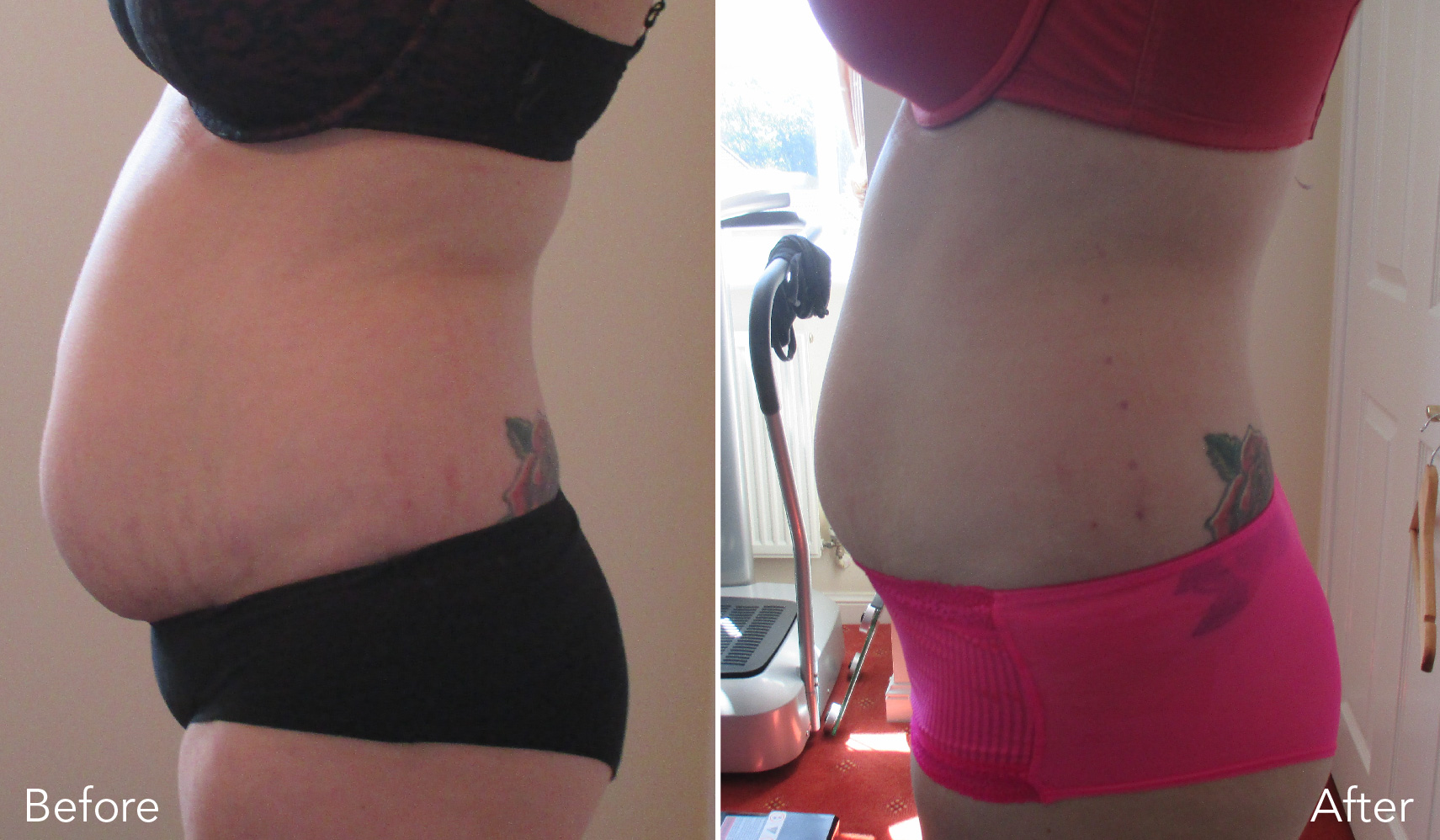 laser lipo treatment before and after