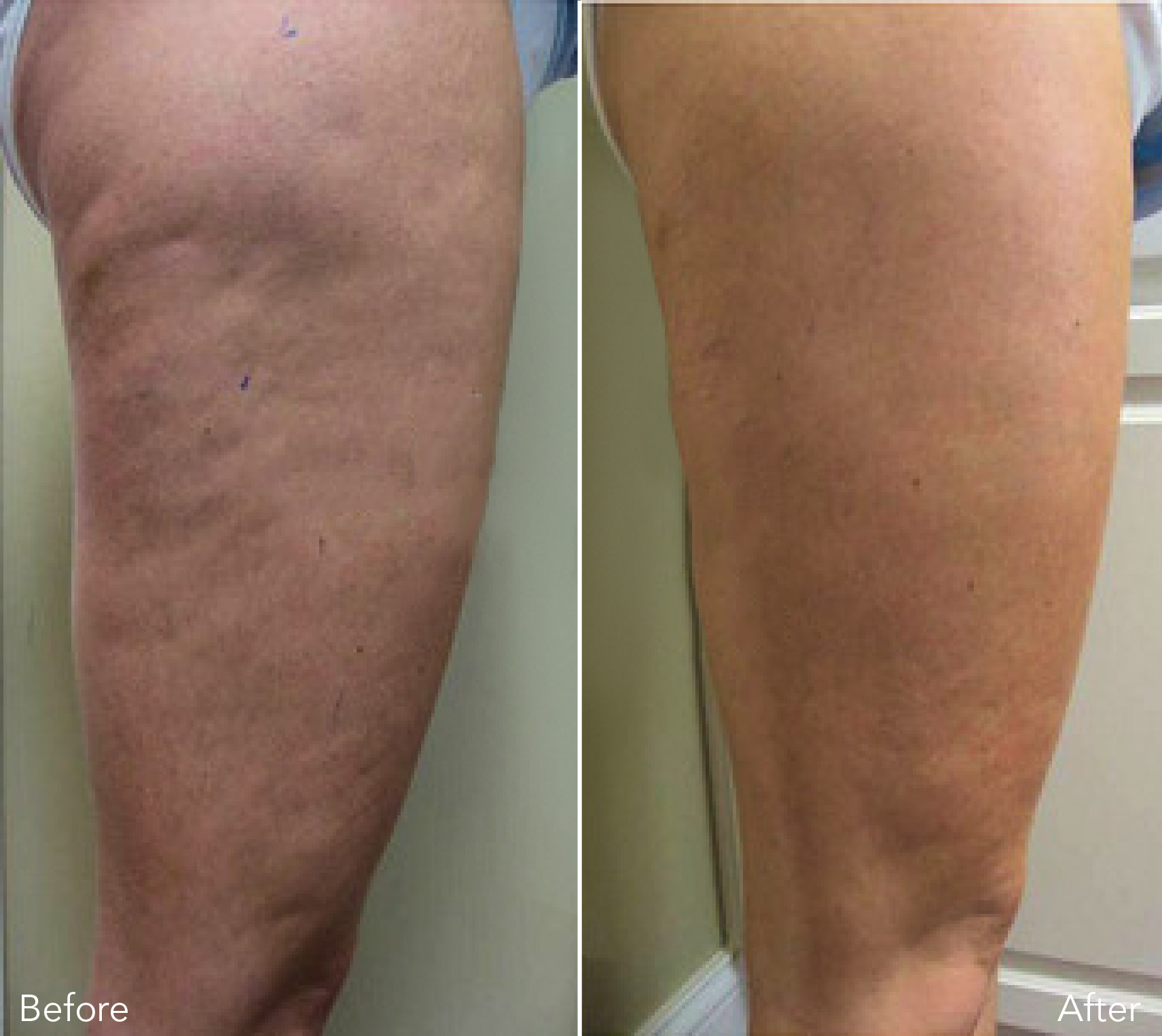 Ultimate cellulite treatment before and after