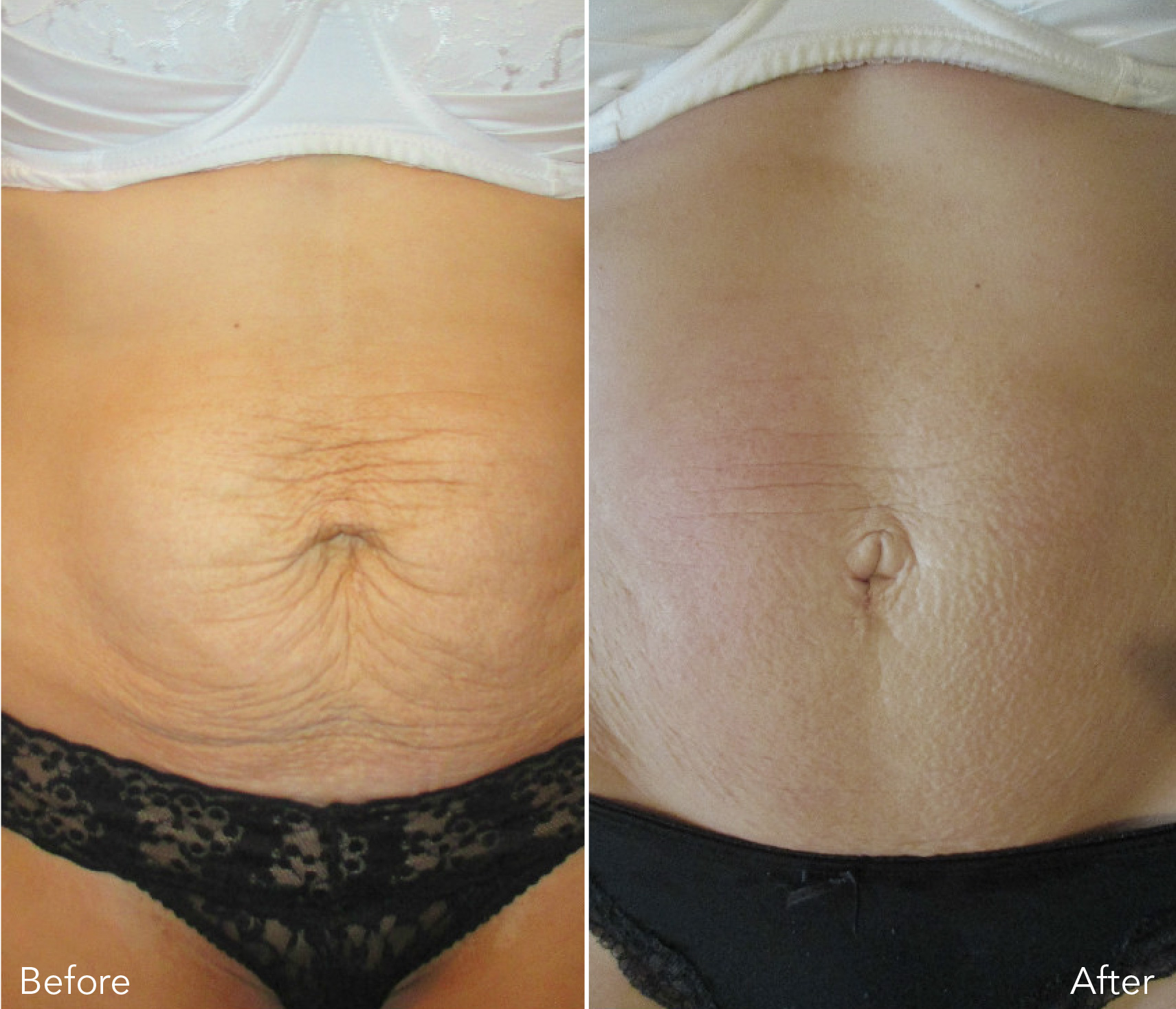 Body sculpting & skin tightenting before and after